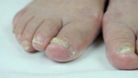 Infezione del fungo sui chiodi del piede del ` s della donna stock footage