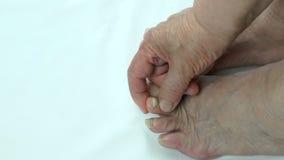 Infezione del fungo sui chiodi del piede del ` s della persona stock footage