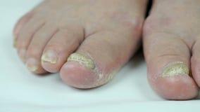 Infezione del fungo sui chiodi del piede della donna video d archivio