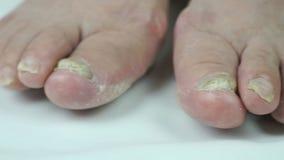 Infezione del fungo sulle unghie del piede del piede della femmina archivi video