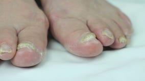 Infezione del fungo sulle unghie del piede del piede della femmina video d archivio