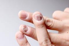 Infezione del fungo sulle unghie mano, dito con l'onicomicosi - fuoco molle fotografia stock