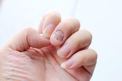 Infezione del fungo sulle unghie mano, dito con l'onicomicosi - fuoco molle fotografie stock libere da diritti