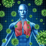 Infezione del polmone Immagini Stock