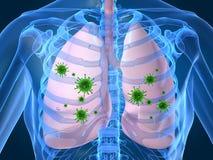 Infezione del polmone Fotografia Stock