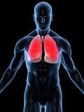 Infezione del polmone Fotografia Stock Libera da Diritti
