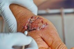 Infezione della ferita di lesione del morso di cane Fotografia Stock Libera da Diritti