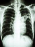 Infezione di mycobacterium tuberculosis (tubercolosi polmonare) fotografia stock