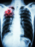 Infezione di mycobacterium tuberculosis (tubercolosi polmonare) immagini stock