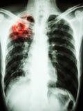 Infezione di mycobacterium tuberculosis (tubercolosi polmonare) immagini stock libere da diritti
