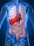 Infiammazione del fegato illustrazione vettoriale