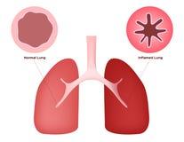Infiammi il polmone Fotografia Stock Libera da Diritti
