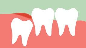Inflamação da impacção angular ou mesial do dente de sabedoria ilustração royalty free