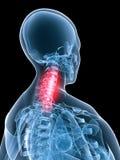 Inflamación del anatomía-cuello de la radiografía Imagen de archivo libre de regalías