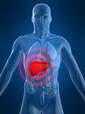 Inflamación del hígado Fotos de archivo libres de regalías