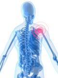 Inflamación del hombro ilustración del vector