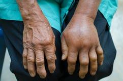 Inflamación de la mano izquierda Fotos de archivo libres de regalías