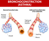 Inflamation of the bronchus causing asthma. Asthma is a chronic inflammatory disease of the airways that is characterized by narrowing of the airways and dyspnea Stock Photos