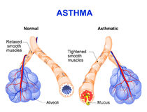 Inflamation of the bronchus causing asthma. Asthma is a chronic inflammatory disease of the airways that is characterized by narrowing of the airways and dyspnea Stock Image