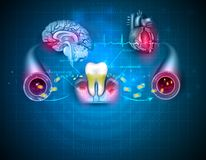 Inflamed gums stock images