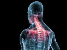Inflamed neck Royalty Free Stock Images