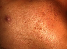 Inflamed skin of the face in pimples and acne. Keloid scars from acne.  stock photography