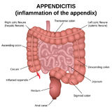 Inflammation of the appendix Stock Image