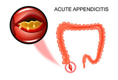 The inflammation of the Appendix. Vector illustration of acute appendicitis, the inflammation of the Appendix Stock Images