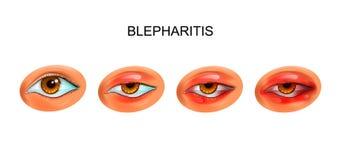 Inflammation av ögonlocken Blepharitis stock illustrationer
