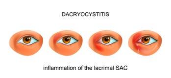 Inflammation av den lacrimal SÄCKEN av ögat dacryocystitis stock illustrationer