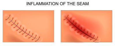 Inflammation av skarven efter blindtarmsoperation vektor illustrationer