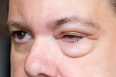 A man with sick eyes. Royalty Free Stock Photo