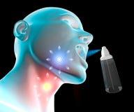 Inflammation för öm hals Arkivbild