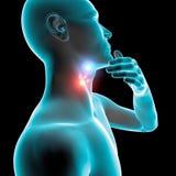 Inflammation för den öm halsen, rodnad, smärtar, minnestavlan och omsorg Arkivfoto