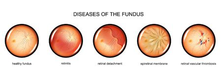 Inflammation of the fundus, retinal detachment. Vector illustration of fundus inflammation, retinal detachment Stock Image