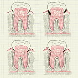 Inflammation of the gums Stock Image