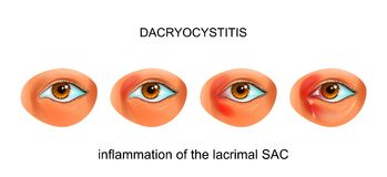 Inflammation of the lacrimal SAC of the eye. dacryocystitis. Vector illustration of inflammation of the tear SAC of the eye. dacryocystitis stock illustration