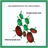 Inflammation of the lymph nodes. Infographics. Vector illustration on isolated background.  Stock Photography