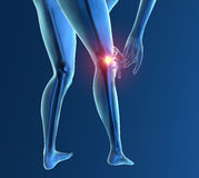 Inflammation pain knee skeleton x-ray Stock Photos