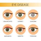 Infographic ögonsjukdom royaltyfri illustrationer