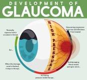 Infographic с развитием необработанного заболевания глаукомы, иллюстрации вектора Стоковое Изображение