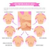 Infographic de voorlichtingsvector van borstkanker stock illustratie