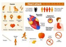 Infographic hartaanval vector illustratie