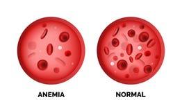 Infographic image of anemia isolated on white background royalty free illustration