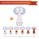 Infographic mechanism of central sensitization. stock illustration