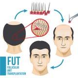 Infographic medicinsk vektor för manlig behandling för hårförlust stock illustrationer