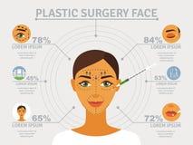 Infographic Plakat des Gesichtes der plastischen Chirurgie Lizenzfreies Stockfoto