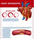 Infographic Realistisch Hart en Geblokkeerd Vet Schip royalty-vrije illustratie