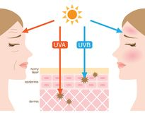 Infographic skin illustration. the difference between UVA and UVB rays penetration. UVA rays damage the dermis, and a major part in skin aging and wrinkling. UVB Royalty Free Stock Photos
