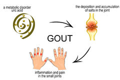Infographics για την ασθένεια gout, podagra Στοκ φωτογραφία με δικαίωμα ελεύθερης χρήσης